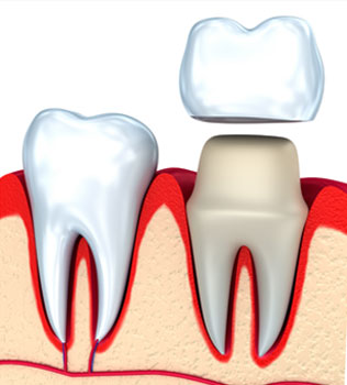 Dental Crowns in San Mateo and Mountain View CA