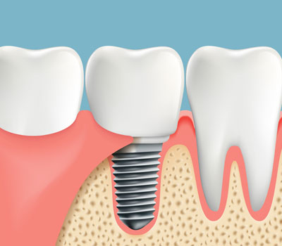 Dental Implants, offered by Wu Dental in San Mateo