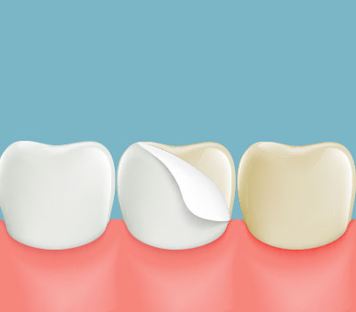 Dental Veneers at Wu Dental